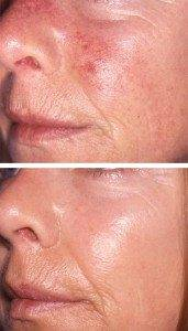 Laser Photorejuvenation 1