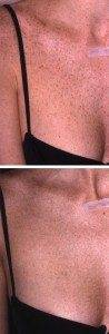 Laser Photorejuvenation 2