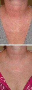 Laser Photorejuvenation 3