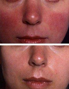 Laser Photorejuvenation 5