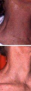 Laser Photorejuvenation 6