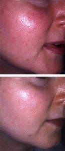 Laser Photorejuvenation 7