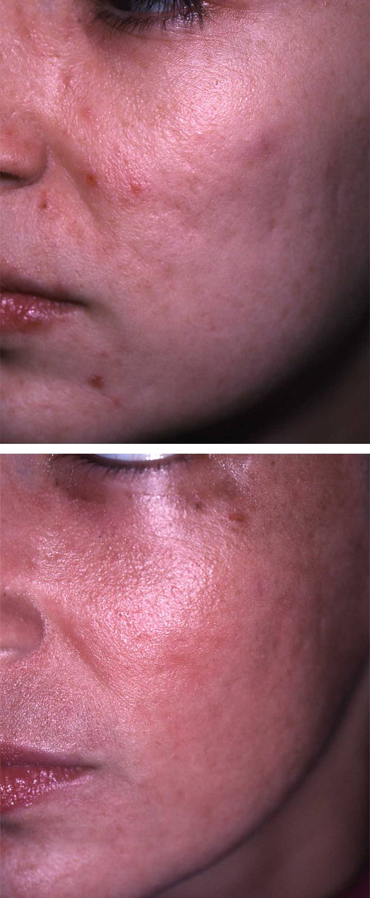 Laser Skin Resurfacing Before Amp Afters 193 Da Aesthetic
