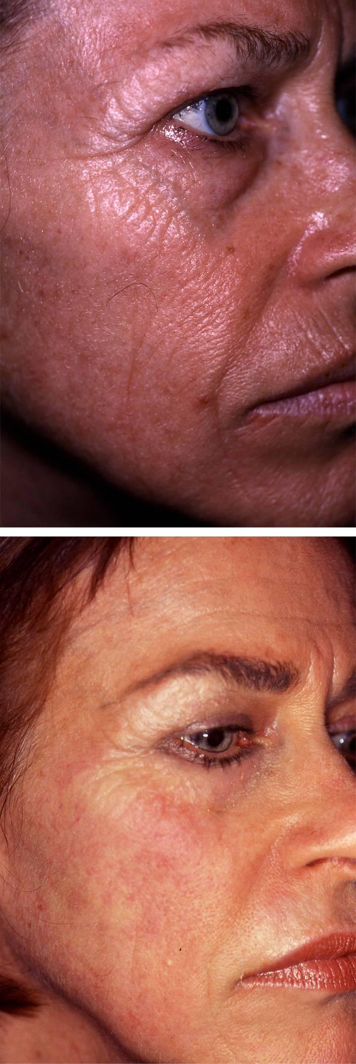 laser skin resurfacing 8
