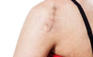 scar-treatment
