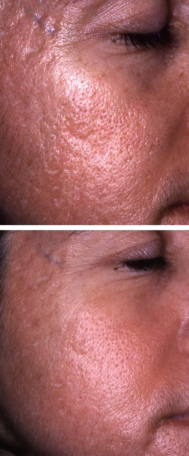 Acne Scar Removal Sydney Nsw Ada Aesthetic Medicine