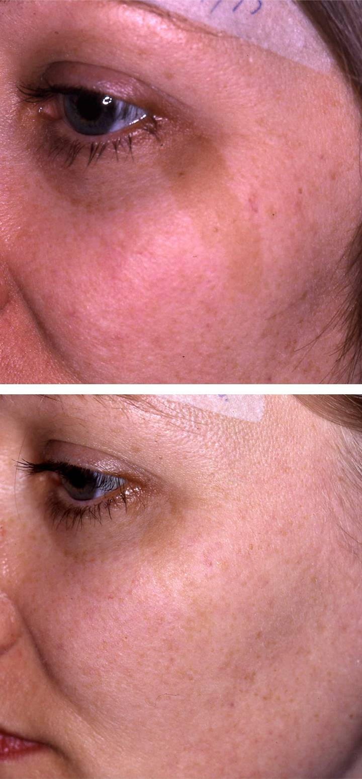 Birthmark Treatment Before Amp After 193 Da Aesthetic Medicine