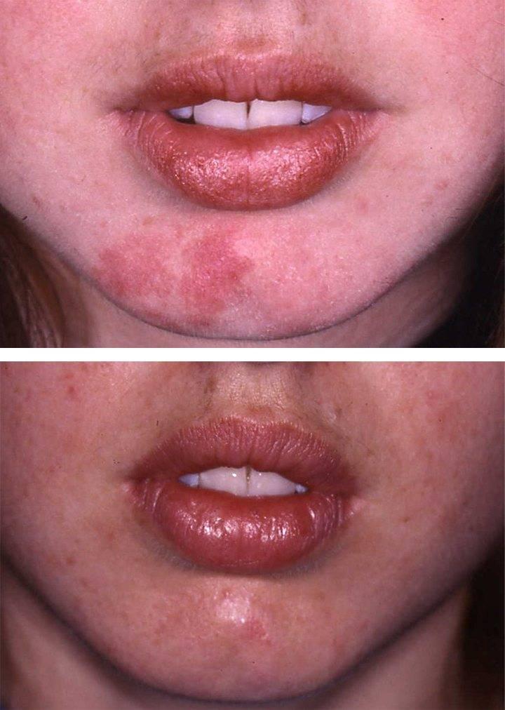 Birthmark Treatment Before Amp After 193 Da Aesthetic Medicine