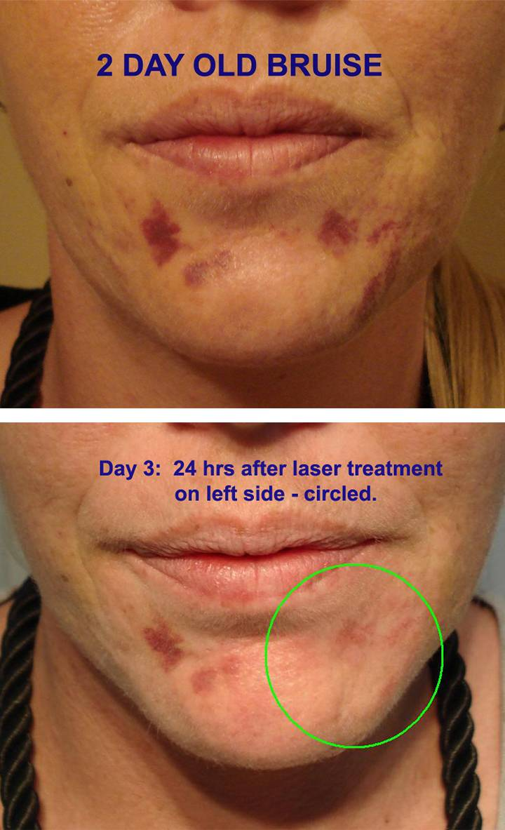 Bruise Treatment Sydney NSW | Áda Aesthetic Medicine