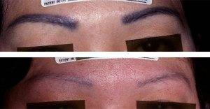 cosmetic tattoo removal 5