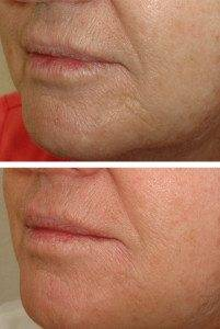 Cosmetic Injections Treatments 1