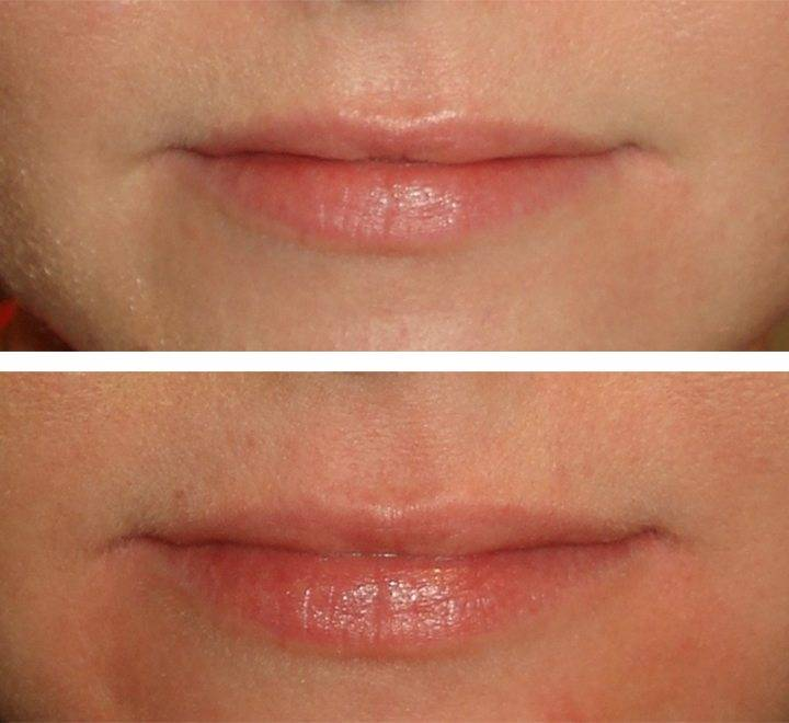 Cosmetic Injections Treatments 2