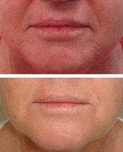 Cosmetic Injections Treatments 4
