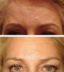 Cosmetic Injections Treatments 8