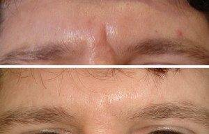 Cosmetic Injections Treatments 9