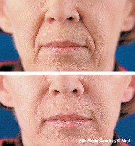 Cosmetic Injections Treatments 10