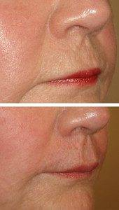 Cosmetic Injections Treatments 11