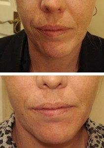 Cosmetic Injections Treatments 12