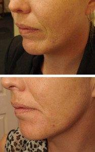 Cosmetic Injections Treatments 13