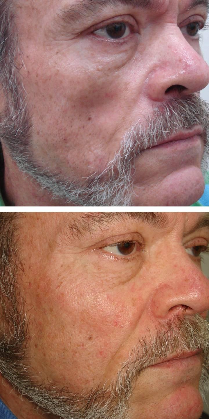 Facial Volumising 11