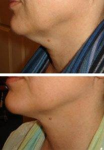 facial slimming 1