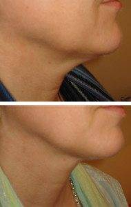 facial slimming 2