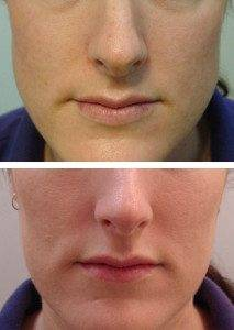 facial slimming 4