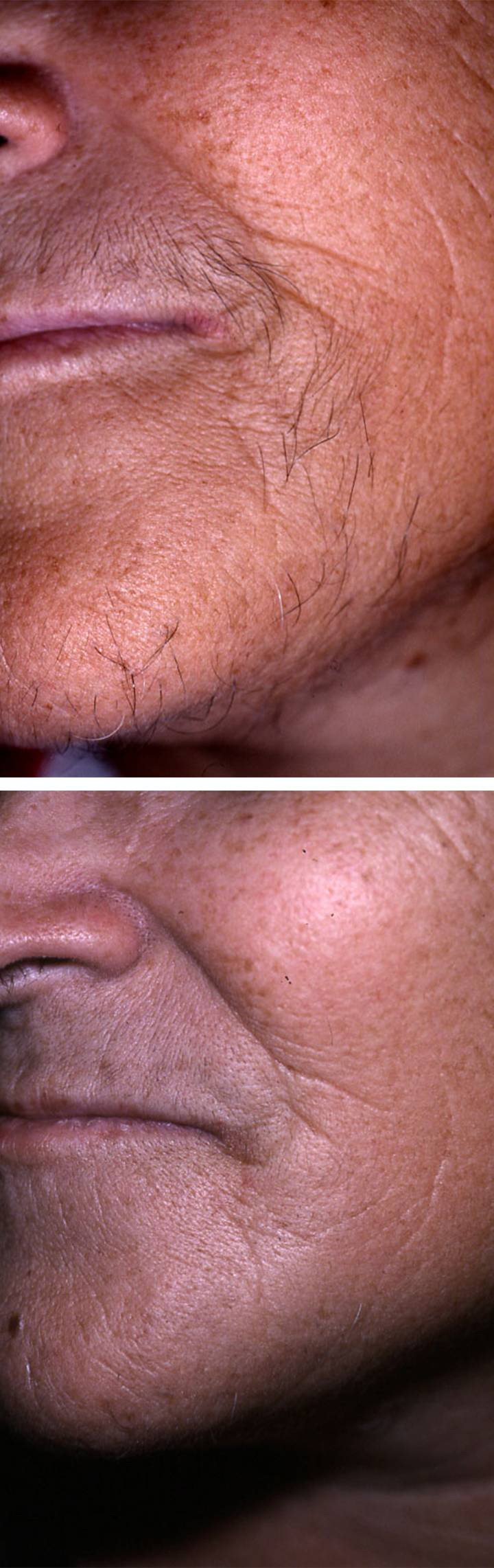 Hair Removal Laser 1