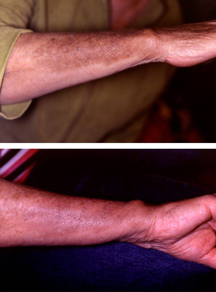 Hand Rejuvenation 1