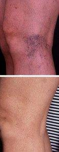 Leg Vein Treatment 2