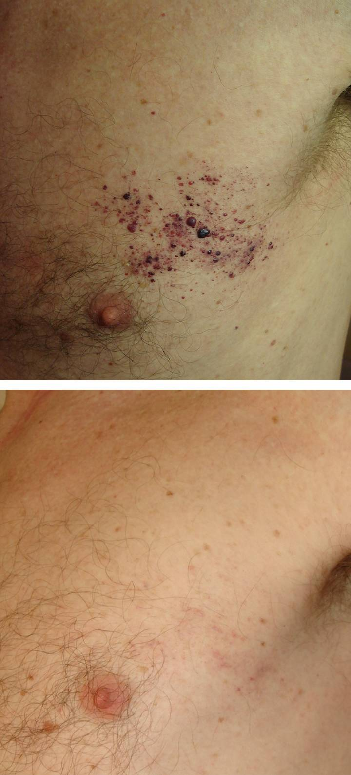 Neck  U0026 Chest Treatment Before  U0026 Afters