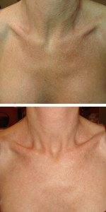 neck & chest photo 8