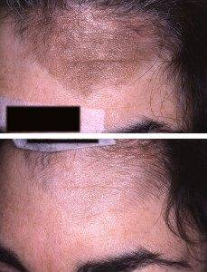Pigmentation Removal 1