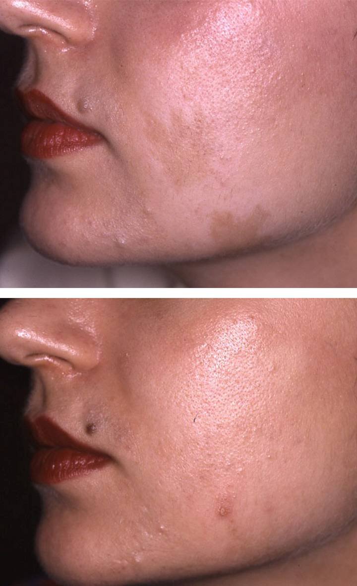 Pigmentation Removal Ada Aesthetic Medicine