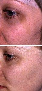 Pigmentation Removal 3