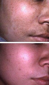 Pigmentation Removal 4