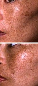 Pigmentation Removal 5
