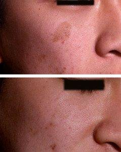 Pigmentation Removal 7