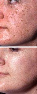 Pigmentation Removal 8