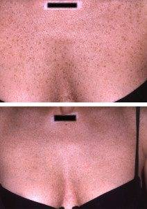 Pigmentation Removal 9