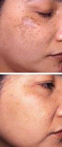 Pigmentation Removal 10