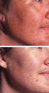 Pigmentation Removal 11