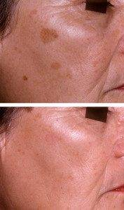 Pigmentation Removal 14