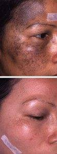 Pigmentation Removal 15
