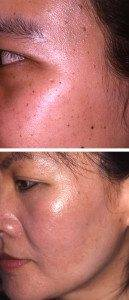 Pigmentation Removal 16