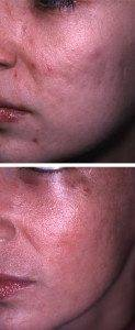 Scar Removal Treatments 2