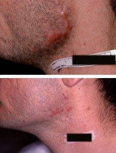 Scar Removal Treatments 4