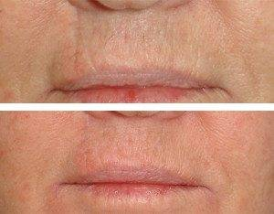 Scar Removal Treatments 7