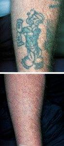 Tattoo Laser Removal 9