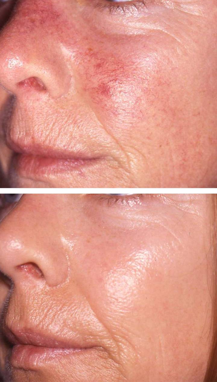 Vascular Laser Amp Ipl Treatment 193 Da Aesthetic Medicine